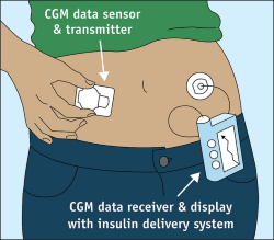 CGM diagram from FDA